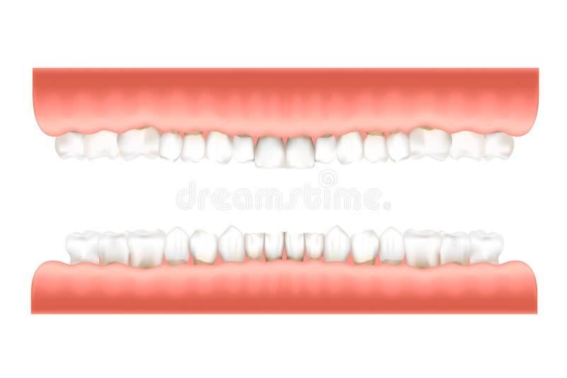 Infographic Diagramm des Gebisses mit den realistischen menschlichen Zähnen im rosa Gummi auf den oberen und untereren Kiefern lo lizenzfreie abbildung
