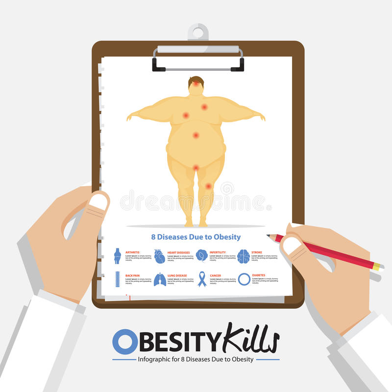 Infographic for 8 Diseases due to obesity in men in flat design. Clipboard in doctor hand. Medical and health care report. royalty free illustration