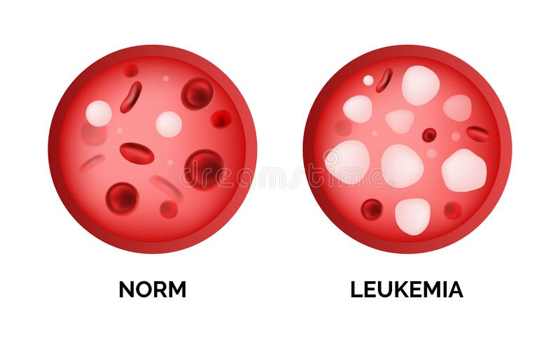 Infographic image of leukemia, lukemia or leukaemia isolated stock illustration