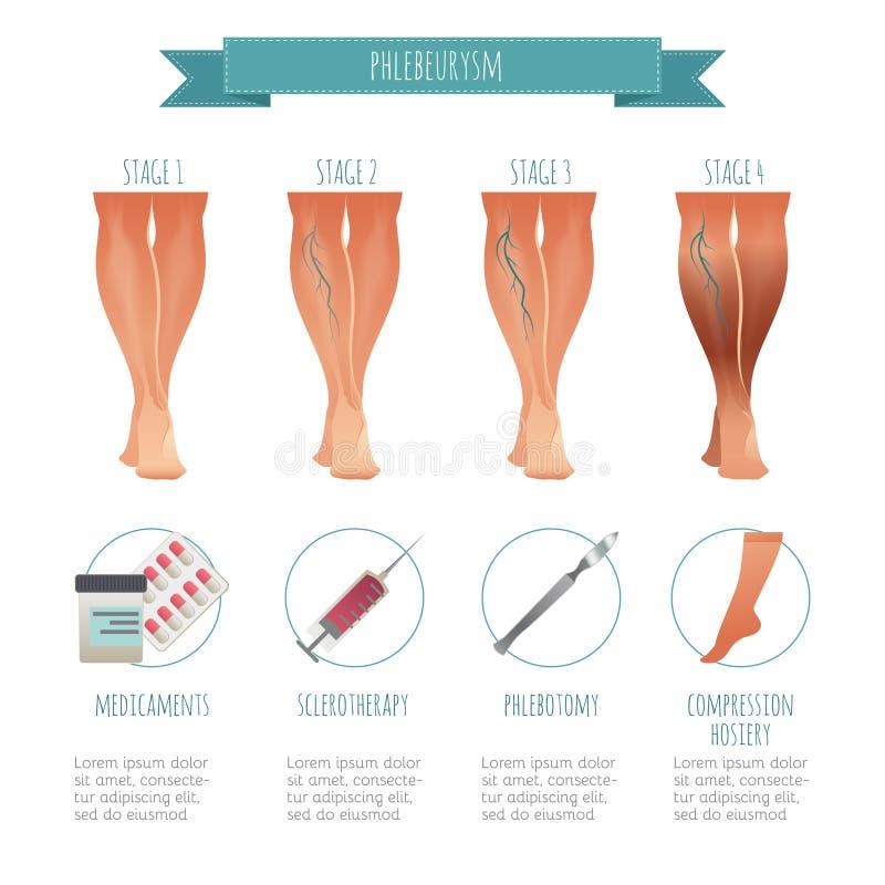 Infographic Phlebology, behandelend spataders Vectorillustratie van stadium van aderziekten Medische compressie vector illustratie