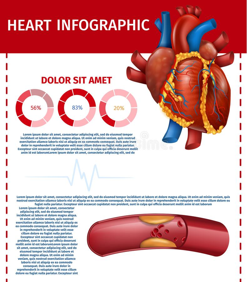 Infographic Realistyczny serce i Blokujący Gruby naczynie royalty ilustracja