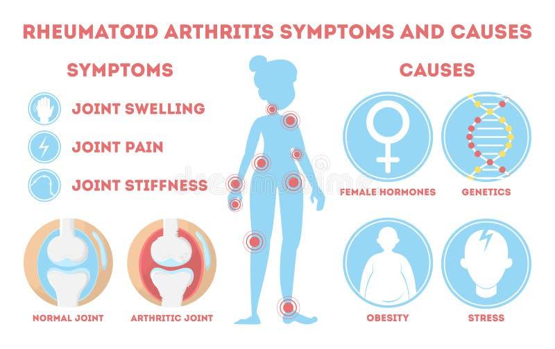 Infographic reumatiek Beenziekte te voet, hand stock illustratie