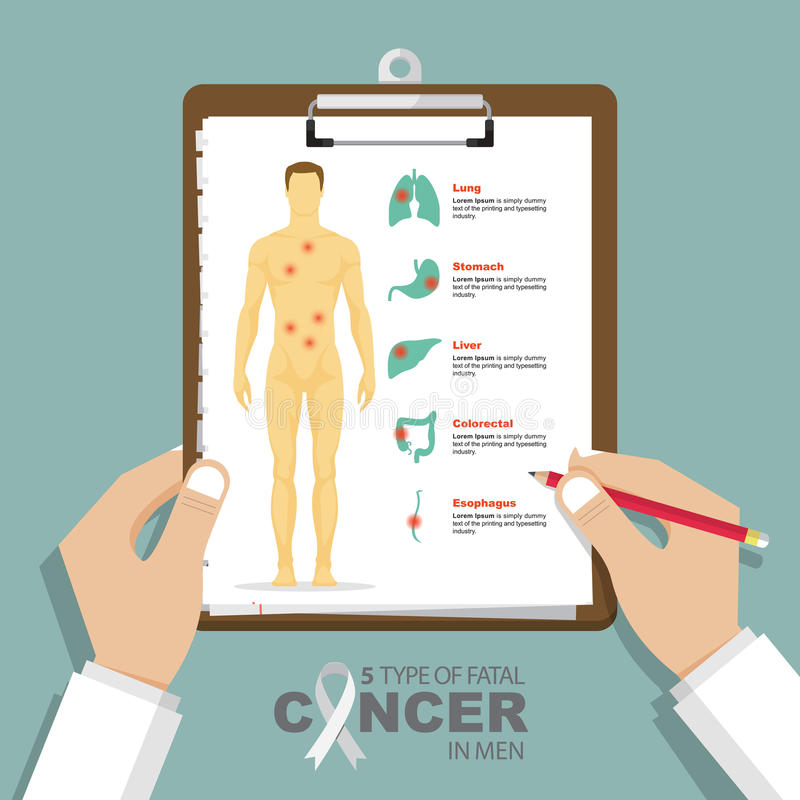 Infographic for top 5 type of fatal cancer in men in flat design. Clipboard in doctor hand. Medical and health care report. royalty free illustration