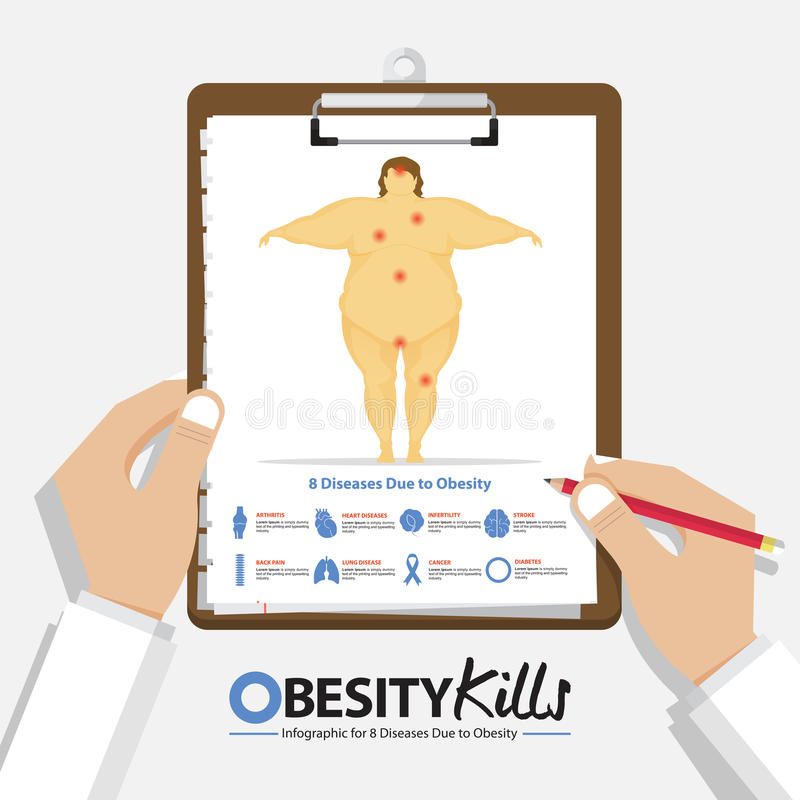 Infographic for top 5 type of fatal cancer in women in flat design. Clipboard in doctor hand. Medical and health care report. royalty free illustration