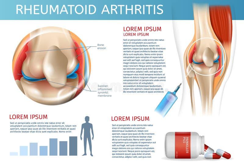 Infographic traktowania metody Rheumatoid artretyzm ilustracja wektor