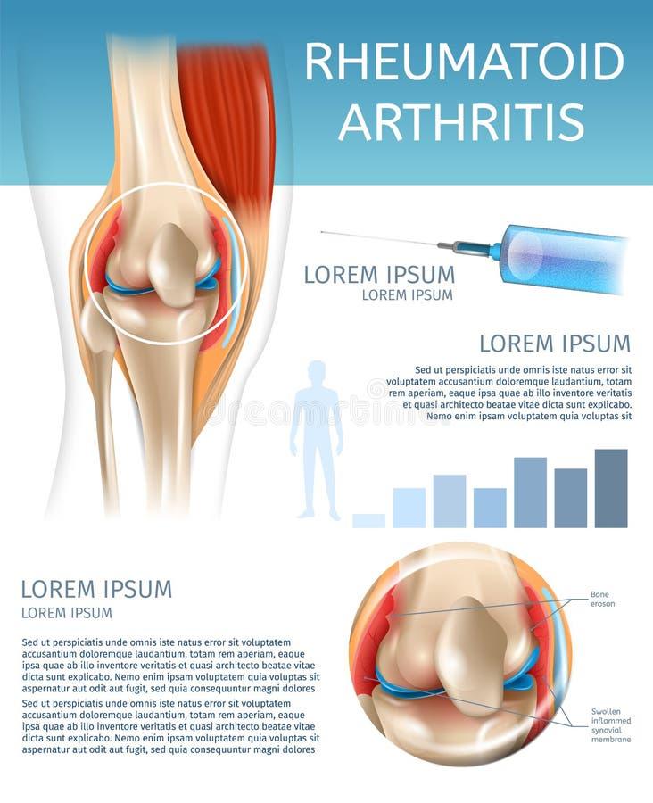Infographic Treatment Method Rheumatoid Arthritis royalty free illustration