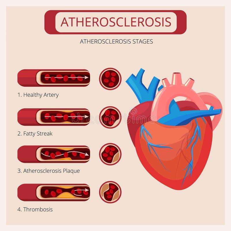 Этапы атеросклероза Infographics вектора циркуляторной системы крови нападения тромба ходов сердца медицинское иллюстрация вектора