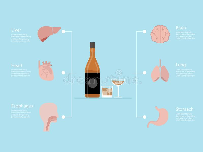 Infographics of alcoholism addiction destroyed. Illustration flat design vector illustration