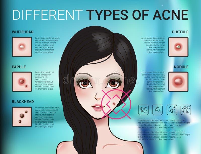 Infographics av olik typ av hudakne stock illustrationer