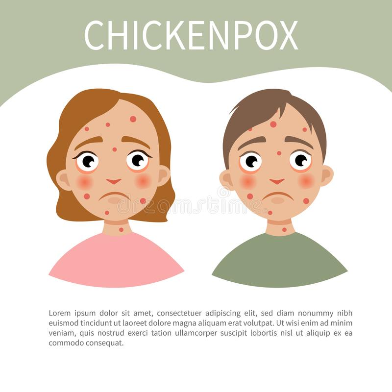 Chicckenpox infographic. Infographics of chickenpox. A boy and a girl with chickenpox vector illustration