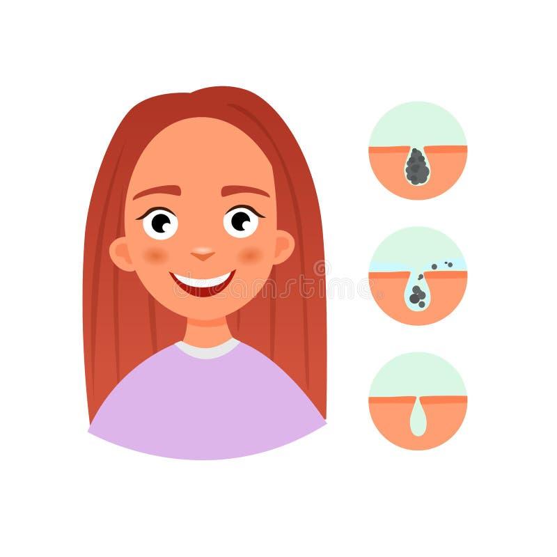 Infographics d'acné illustration stock