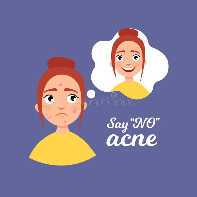 Infographics d'acné illustration de vecteur