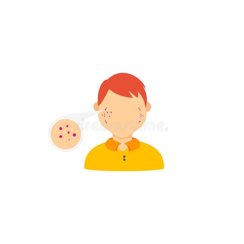 Infographics de calibre au sujet des problèmes dermatologiques Infographics d'acné illustration stock