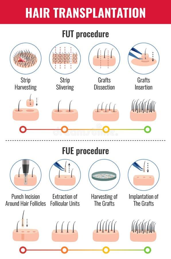 Infographics di trapianto dei capelli illustrazione vettoriale