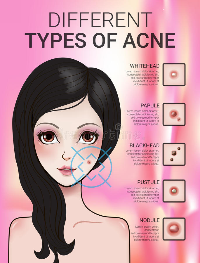 Infographics of different type of skin acne royalty free illustration