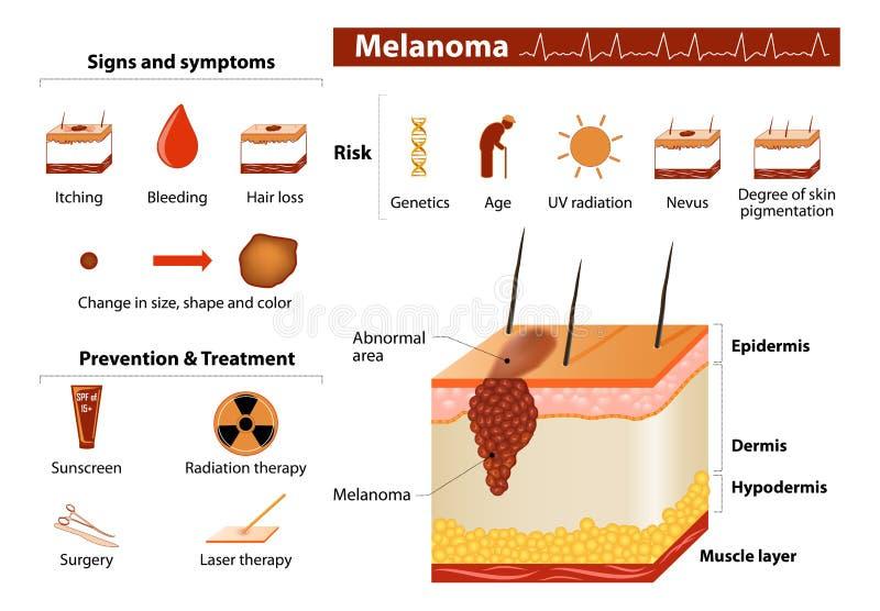 Infographics do câncer de pele ilustração stock