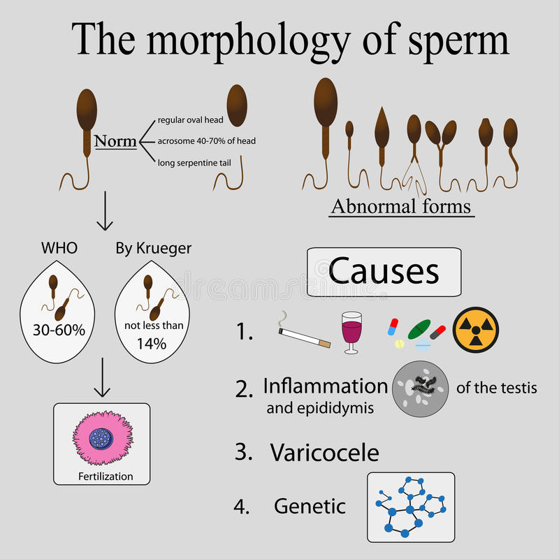 Causes of poor sperm morphology