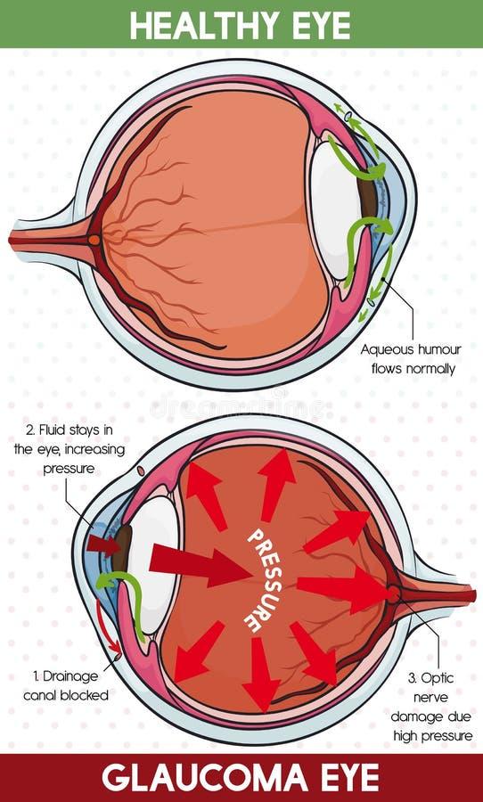Informação comparativa entre o olho saudável e o olho da glaucoma, ilustração do vetor ilustração do vetor