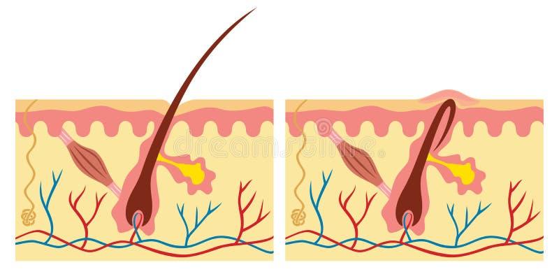 Ingrown en normaal haar vector illustratie