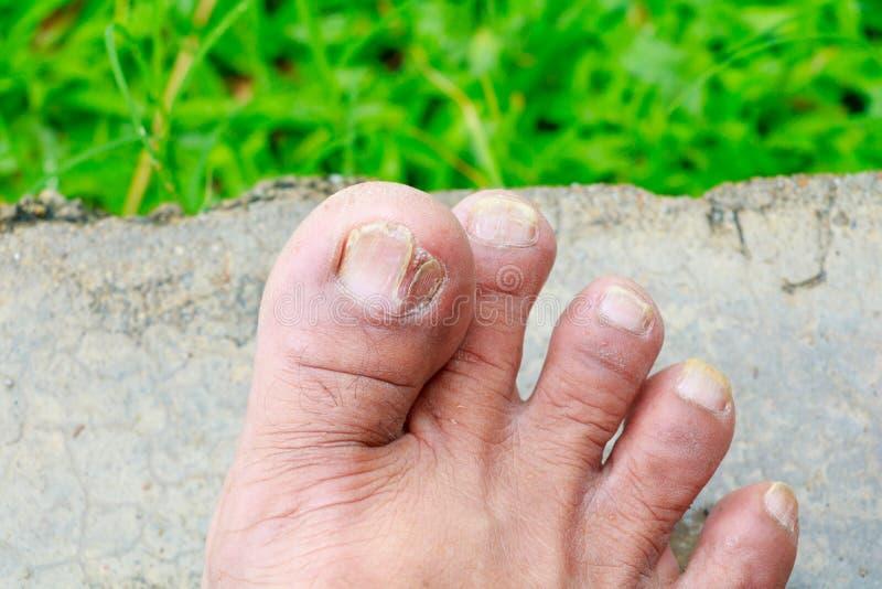 Ingrown gebroken teennagel van de spijker Grote teen op vloer met exemplaarruimte stock afbeeldingen
