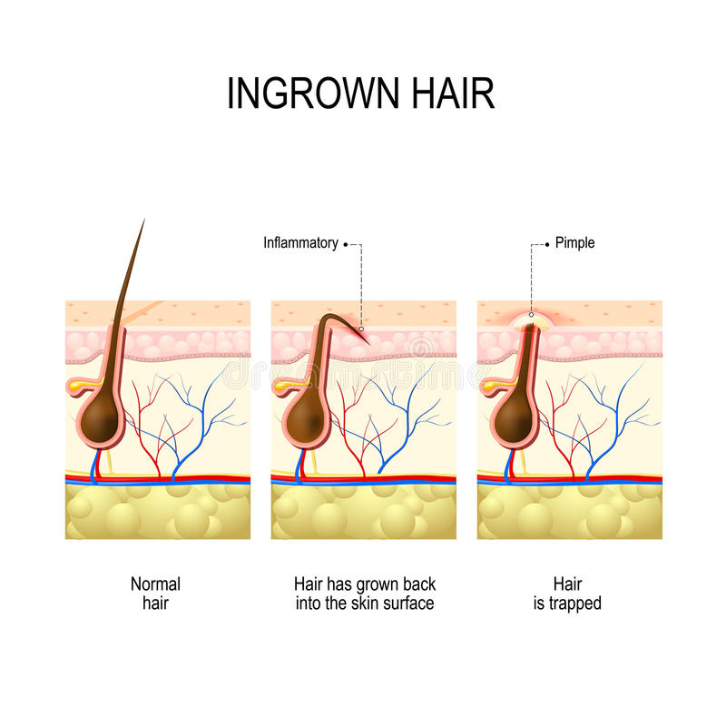 Ingrown Hair After Hair Removal And Shaving Stock Vector ...