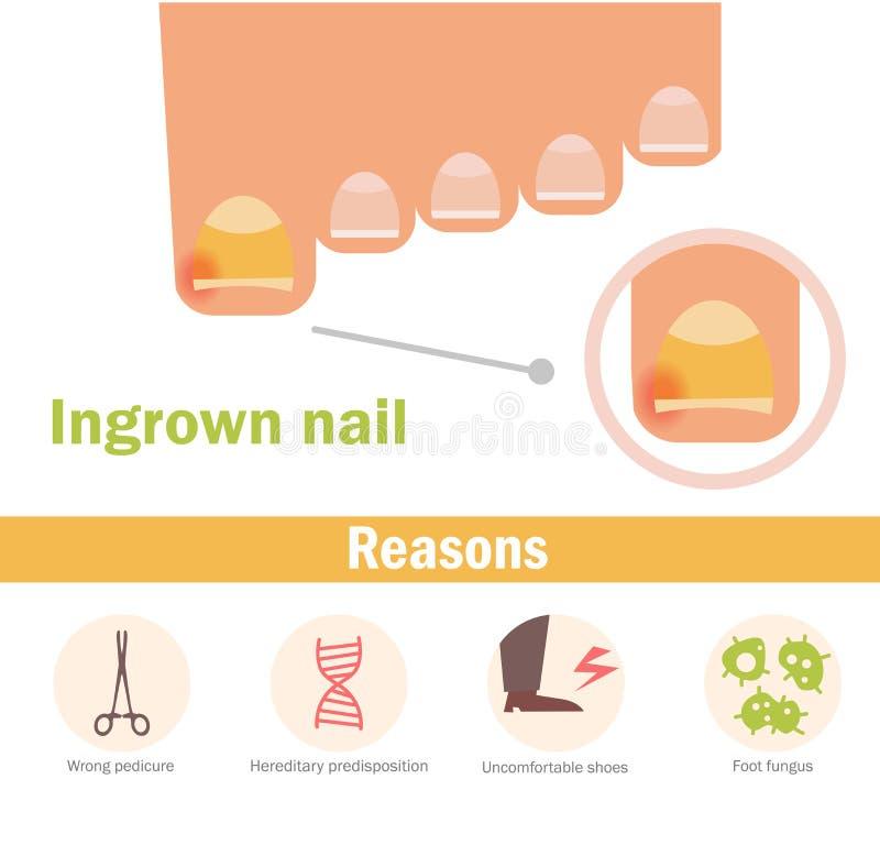 Ingrown nail. Vector. stock illustration