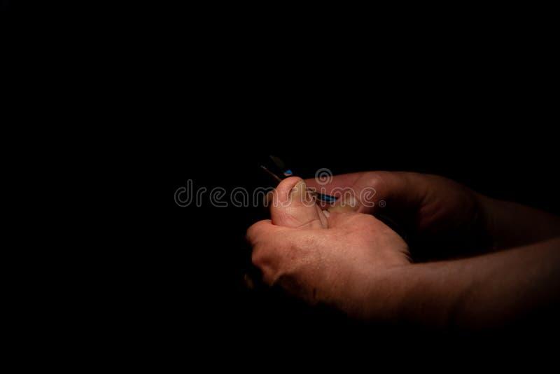 Ingrown teennagel De chirurg snijdt zijn teennagel Achtergrond van zwarte kleur om brieven te zetten royalty-vrije stock afbeelding