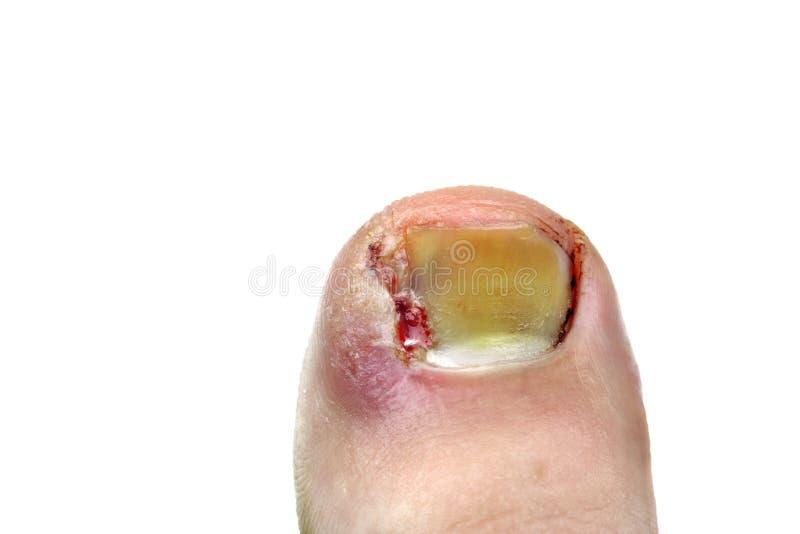 Ingrown toenail стоковое изображение