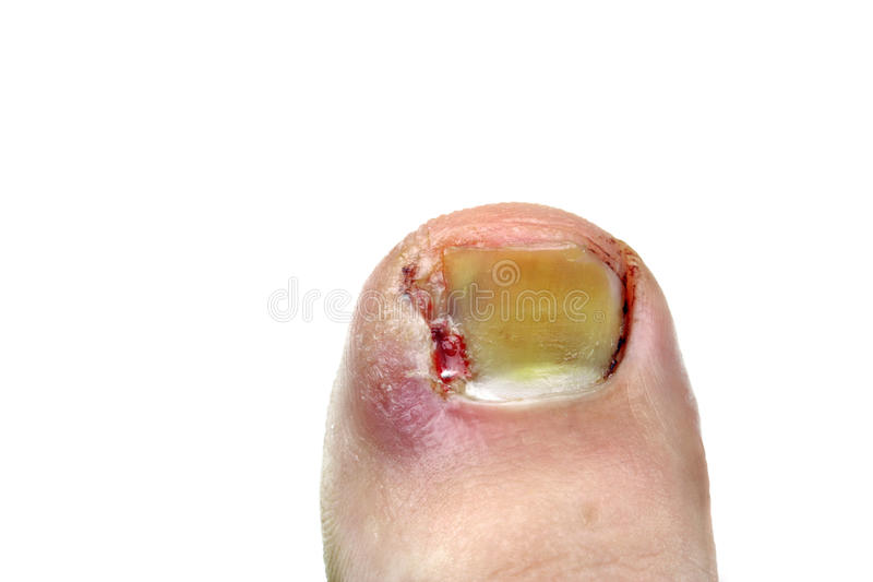 Ingrown toenail stock image. Image of infection, accident - 33306381