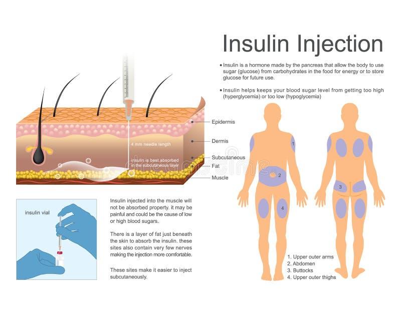 Iniezione dell'insulina Vettore, progettazione dell'illustrazione illustrazione vettoriale