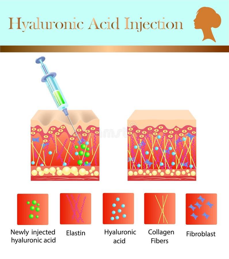 Injeção do ácido hialurónico, antes e influência, ilustração do vetor ilustração stock