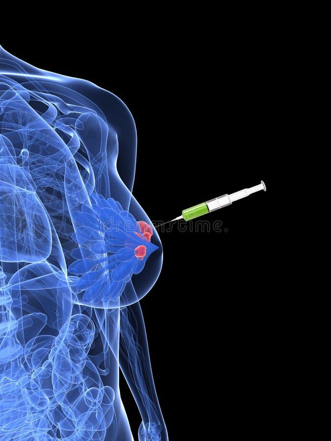 Injeção do cancro da mama - biópsia ilustração stock