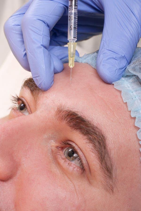 Injeções do tratamento de Botox fotografia de stock