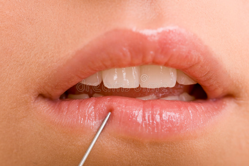 Injection. With a needle into female lips stock photo