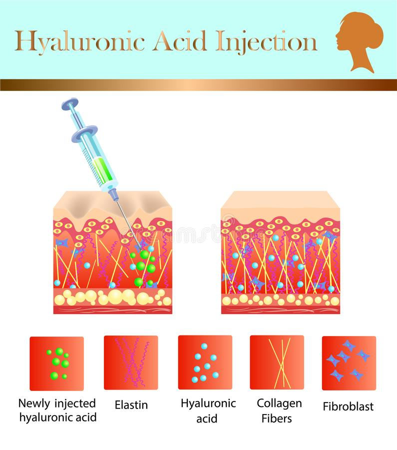 Injection d'acide hyaluronique, avant et affect, illustration de vecteur illustration stock