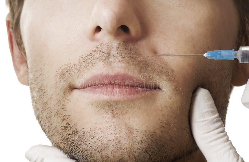 Injection de botox photographie stock libre de droits