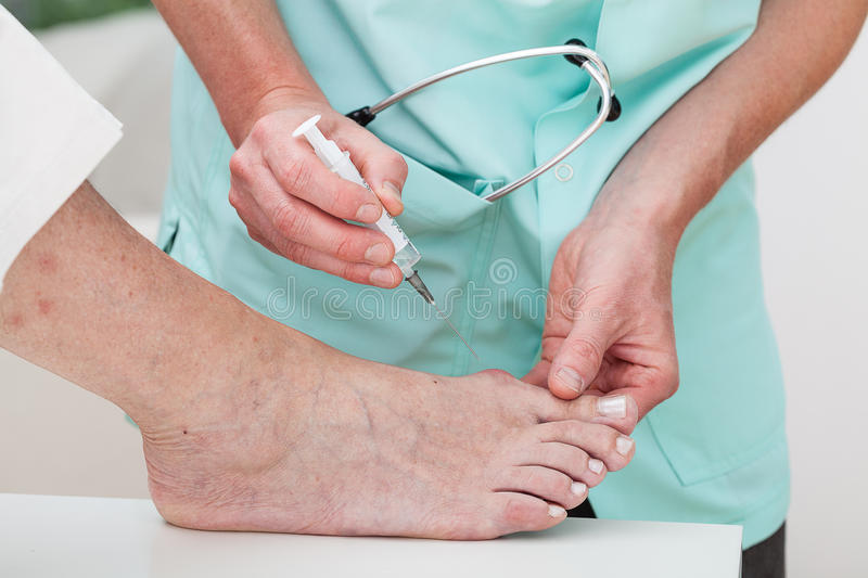 Injection to bunion. Woman getting an injection to a bunion stock images