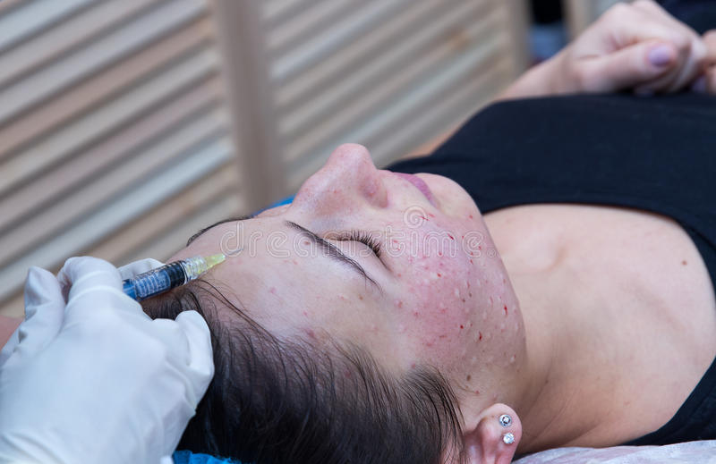 Injections on the face with cosmetic procedures. royalty free stock photos