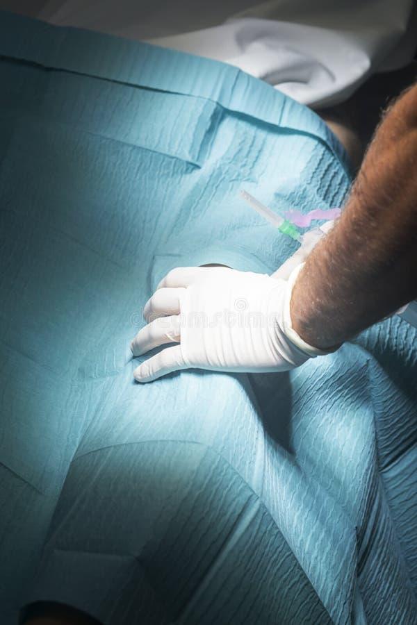 Injektion för knäkirurginarkos royaltyfria foton