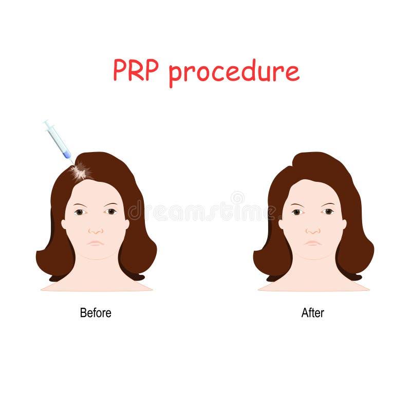 Injektion för plasma PRP för trombocyt rik royaltyfri illustrationer