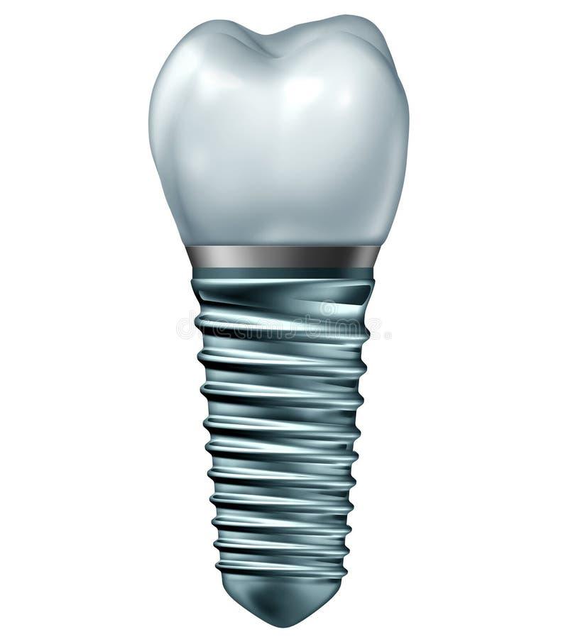 Injerto dental stock de ilustración