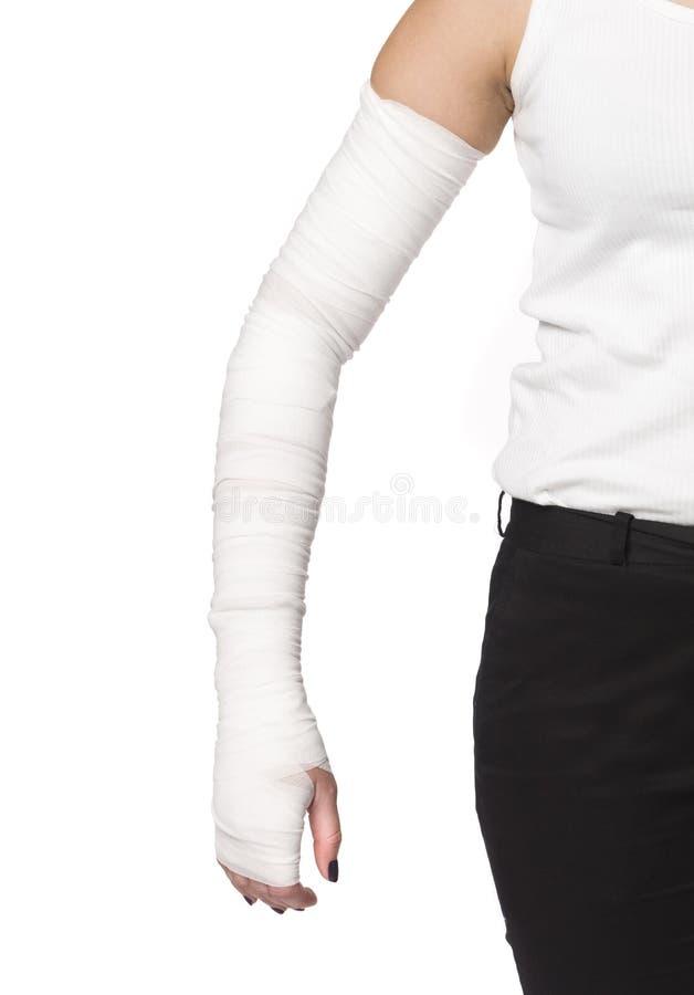 Free Injured Arm Stock Images - 9098294