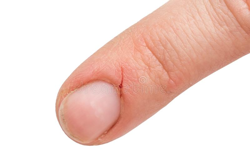 Injured finger from a kitchen knife with blood royalty free stock images