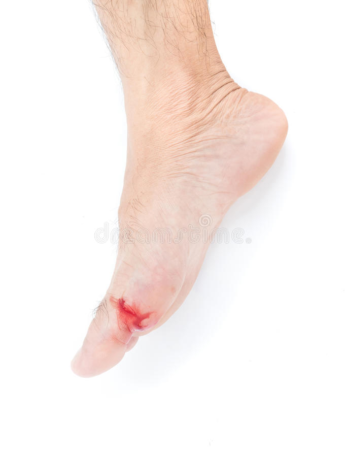Injured foot, Fresh wound and blood from broken glass, white background royalty free stock image