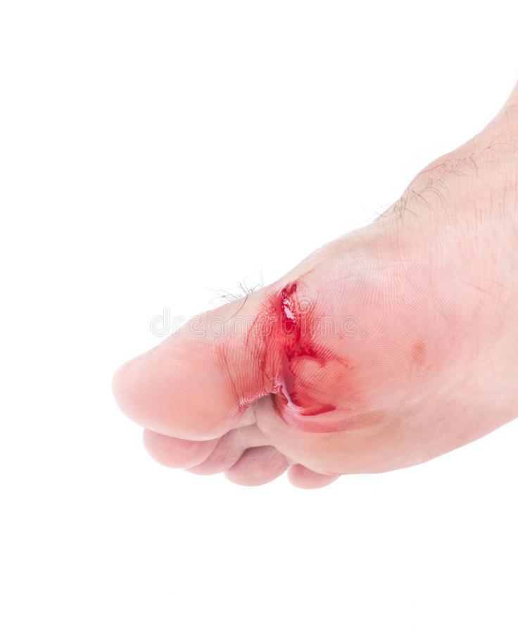 Injured foot, Fresh wound and blood from broken glass, white background stock images
