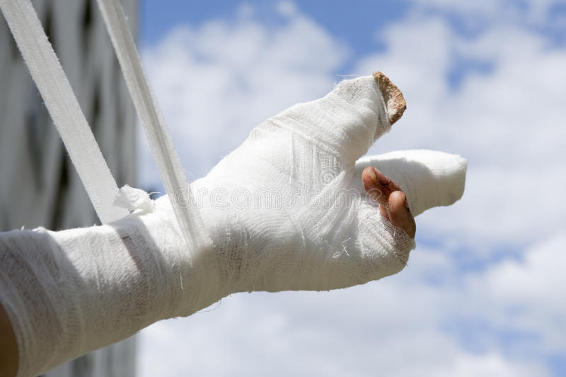 Injured hand royalty free stock photo
