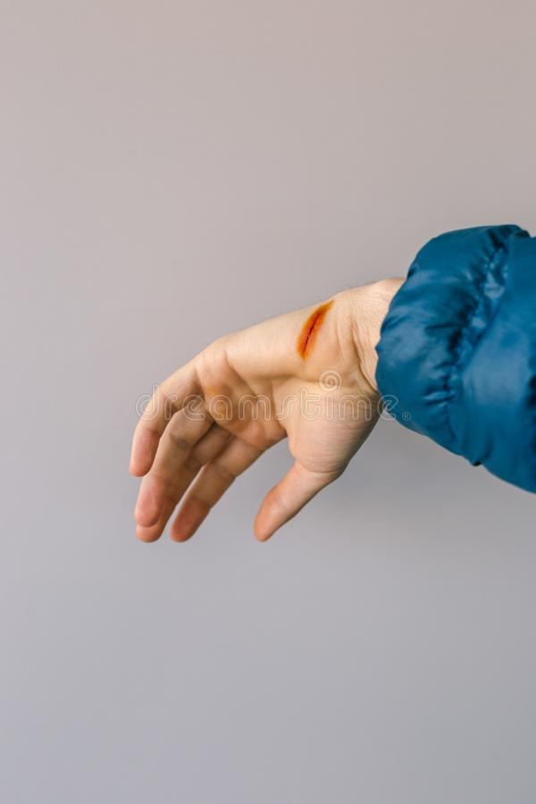 Injured hand with open cut, iodine-treated royalty free stock image