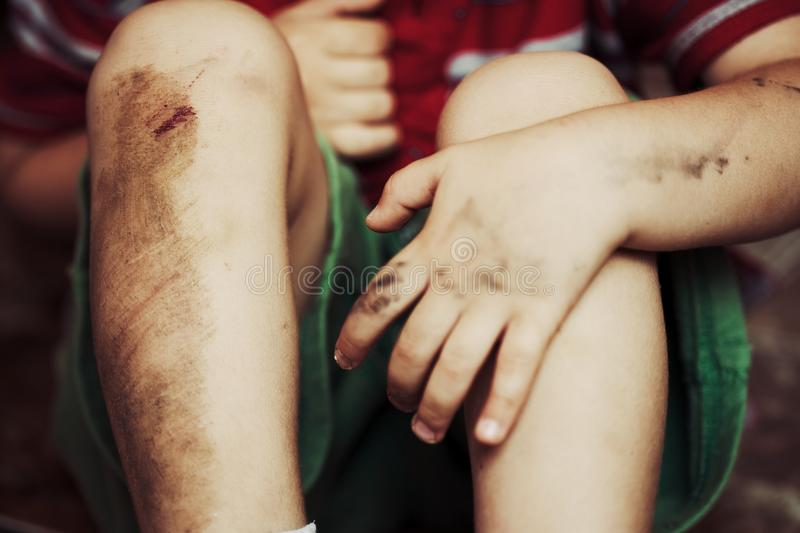 Injured knees. Child with dirty injured knees and bruises stock images