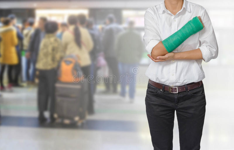 Injured woman with green cast on hand and arm on motion blur in stock photos