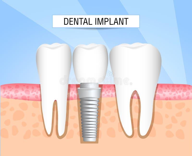 Inplanting van menselijke tanden tandheelkunde tandheelkunde Realistische tandimplant structuur met alle delen: kroon, steunpunt, royalty-vrije illustratie
